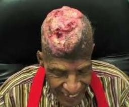 Radiation Experiment left hole in man's head